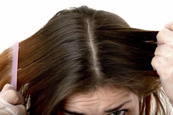 Bật mí cách trị gàu da đầu tận gốc hiệu quả nhất
