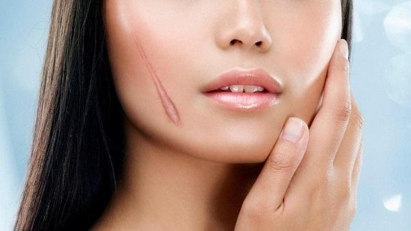 Tạm biệt sẹo với 5 cách xóa và làm mờ sẹo trên da đầu hiệu quả